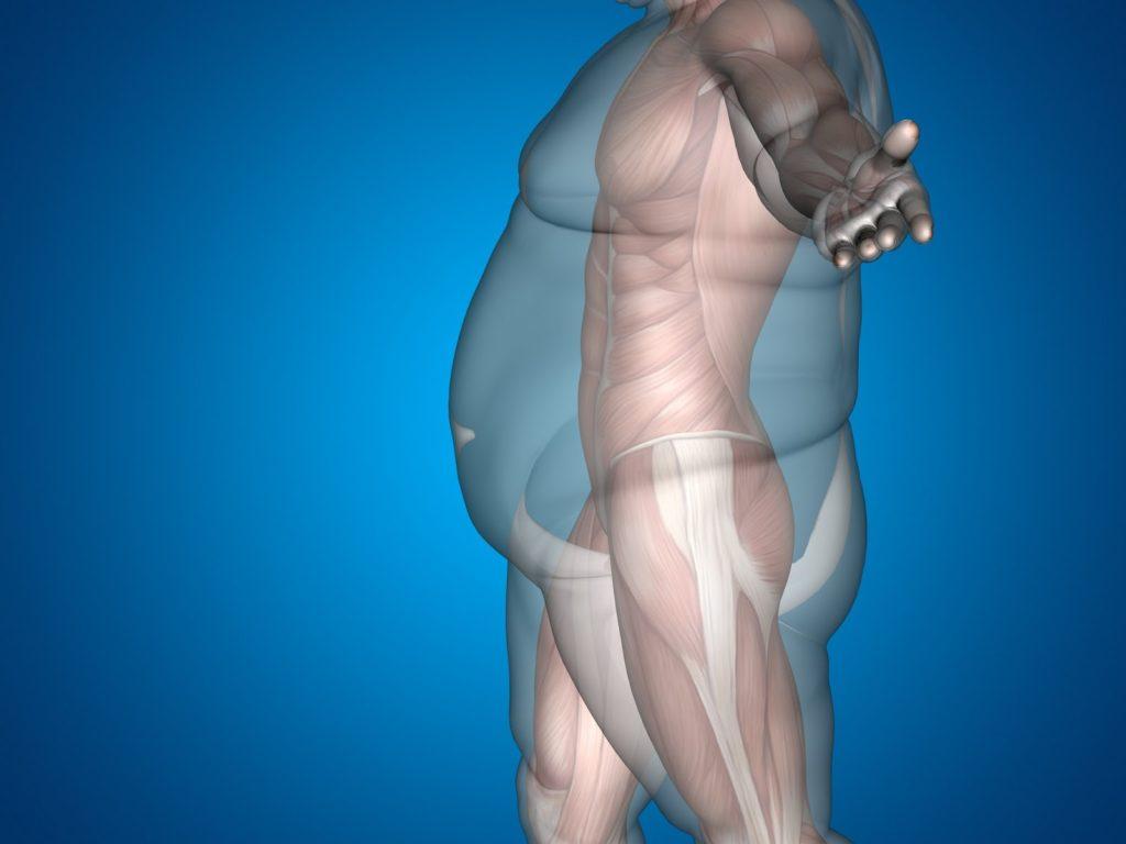 Ожирение. Как похудеть. Программы для похудения